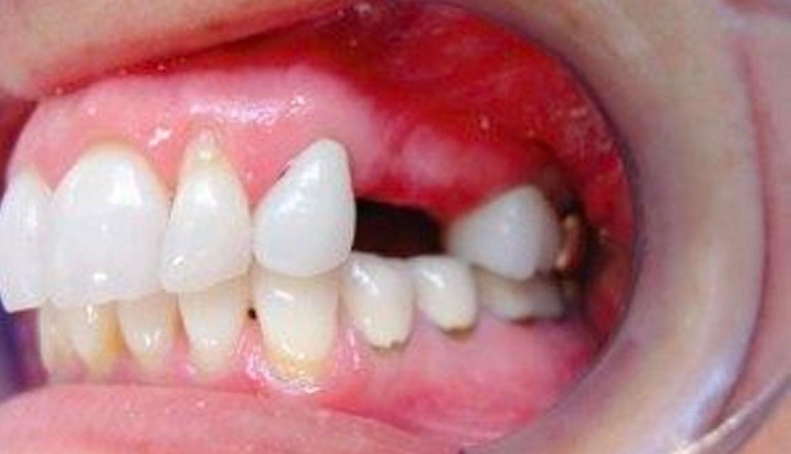 Mini Dental Implants – Before
