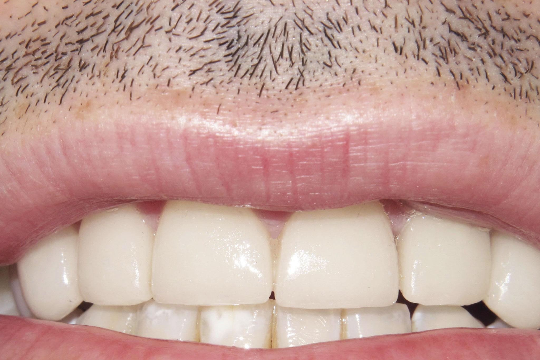 dentist Corvallis OR