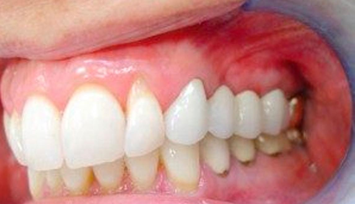 Mini Dental Implants – After